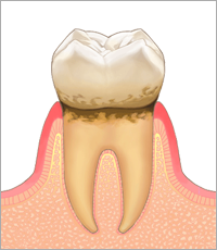 歯肉炎・軽度の歯周炎